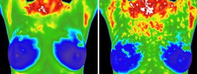 thermographic imaging of breasts jpg 1152x768
